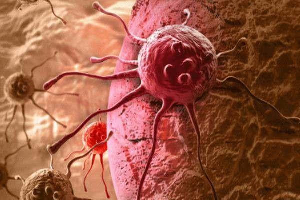 2 mẹ con cùng mắc bệnh ung thư ruột bởi những món ăn quen thuộc này-6