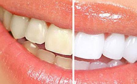 Nguy cơ tai biến khi lạm dụng thuốc tẩy trắng răng