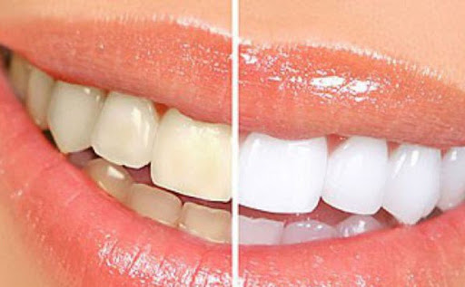 Nguy cơ tai biến khi lạm dụng thuốc tẩy trắng răng-1