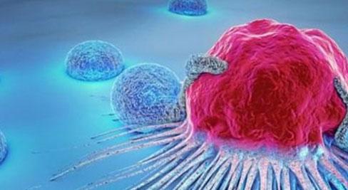 Một gia đình 4 người lần lượt mắc bệnh ung thư: