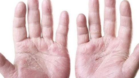 8 dấu hiệu cơ thể