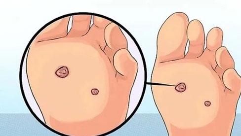 3 dấu hiệu xuất hiện ở vùng chân ngầm cảnh báo nguy cơ mắc ung thư cổ tử cung cao