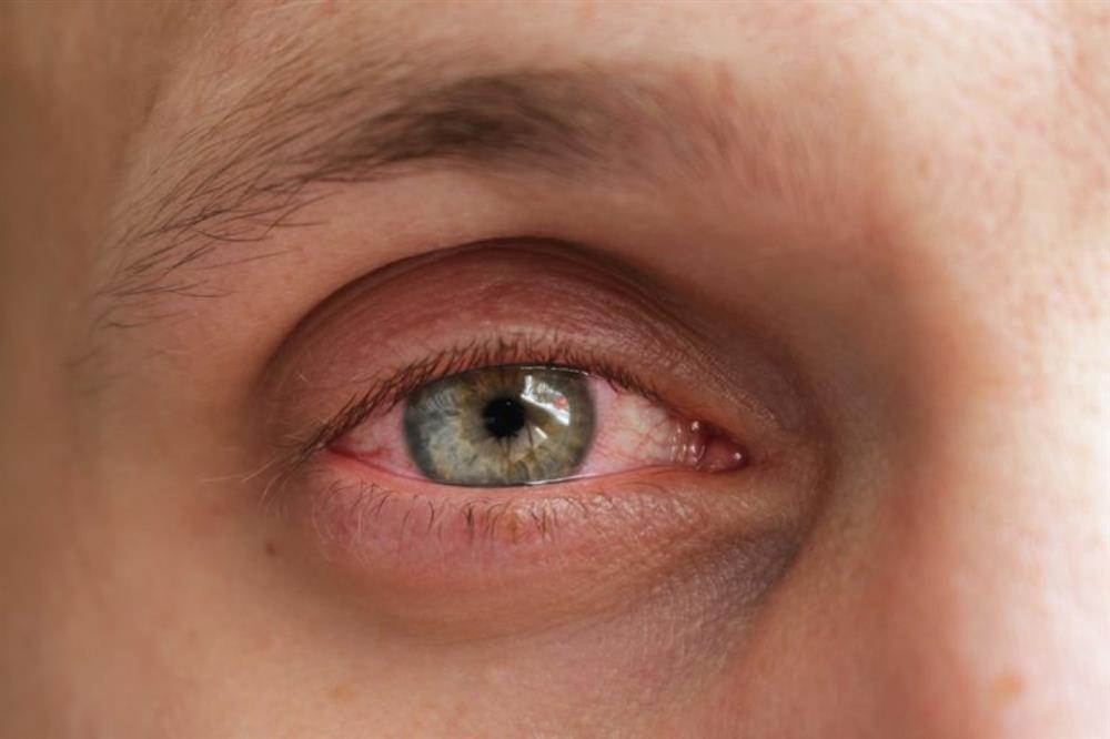 11 triệu chứng và biến chứng mới của bệnh COVID-19-9