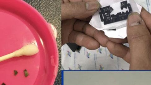 Bé gái 15 tháng tuổi ở Long An nguy kịch vì nuốt 7 miếng dao lam vào bụng