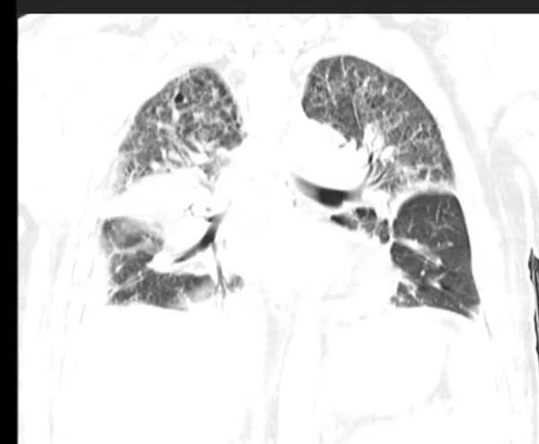 Người đàn ông suýt chết vì suy đa tạng, viêm phổi, bác sĩ chỉ ra nguyên nhân là chiếc điều hòa trong xe hơi 2 tháng không sử dụng-5