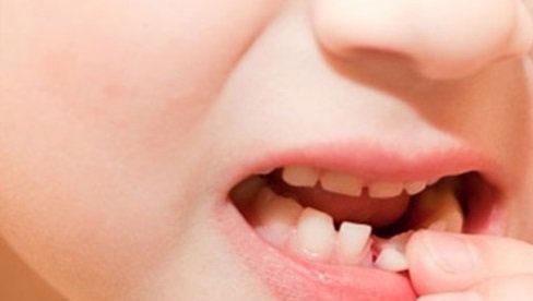 Khi nào nên nhổ răng sữa cho bé? Nhổ răng sữa tại nhà cần lưu ý điều gì?