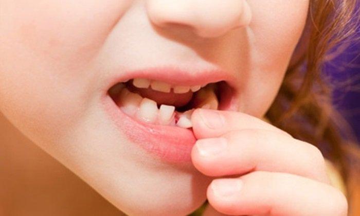 Khi nào nên nhổ răng sữa cho bé? Nhổ răng sữa tại nhà cần lưu ý điều gì?-1