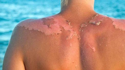 Những mẹo chữa cháy nắng nguy hiểm mà bạn không bao giờ nên
