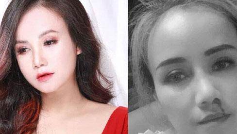 Vụ diễn viên Hoàng Yến bị chồng cũ đánh đến gãy xương mũi: 4 đời chồng bị đánh có đáng không?
