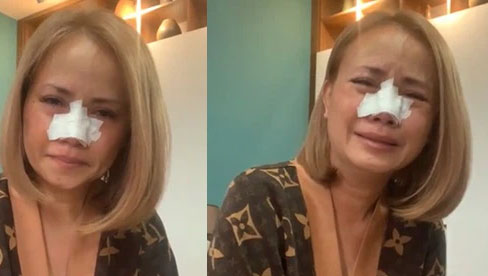 Hoàng Yến livestream khóc nức nở dù mũi đang băng bó, khẳng định nếu ngoại tình sẽ bị xe đâm
