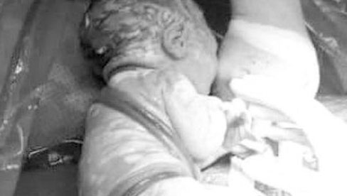 Hi hữu: Bé trai sơ sinh ở Hà Nội có 7 vòng dây rốn quấn quanh cổ và thân