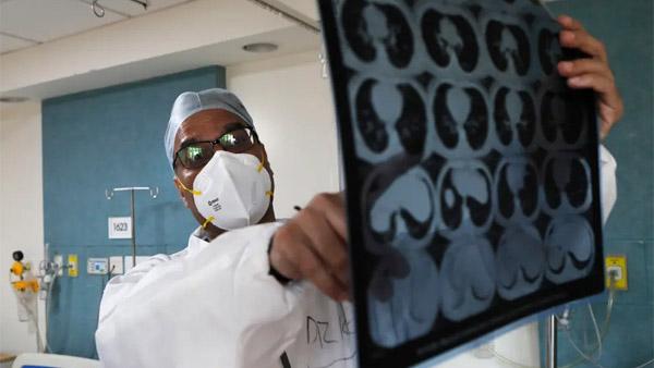 Biến chứng chết xương ở bệnh nhân Covid-19