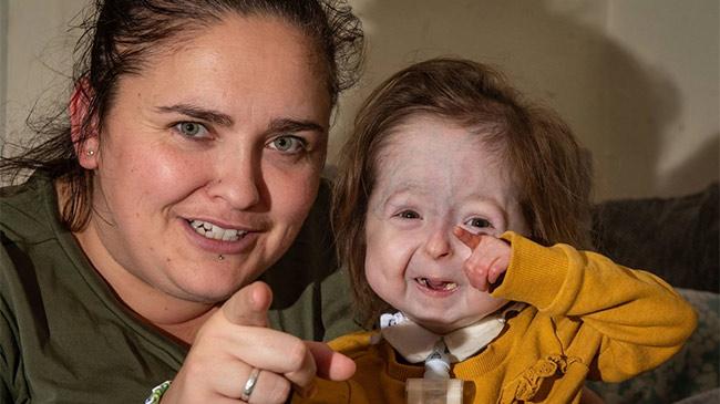 Cô bé duy nhất trên thế giới mang gen đột biến của