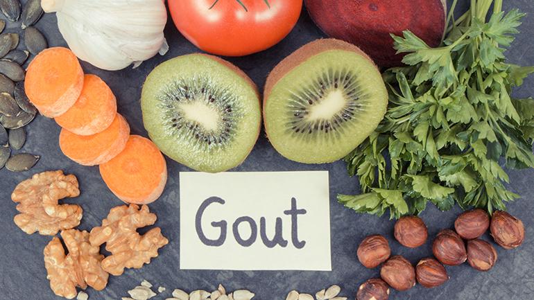 Người bị bệnh gout cần lưu ý những gì trong chế độ ăn hàng ngày?