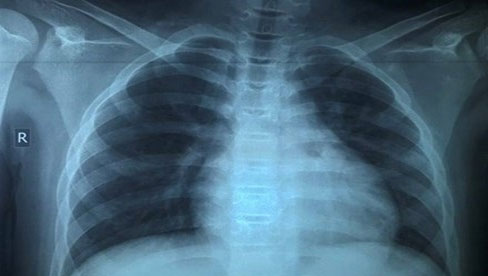Trẻ 13 tuổi mắc Covid-19 tổn thương phổi nặng dù không có bệnh nền