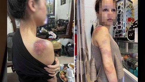 Vợ 9X bị chồng bạo hành xuyên đêm, dùng cả gậy sắt đánh tới biến dạng khuôn mặt