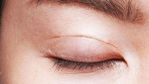 Cô gái suýt mù sau cắt mí mắt phải: Chuyên gia đưa ra  lưu ý trước, sau khi cắt mí mắt